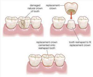 Các trường hợp nào nên sử dụng bọc răng sứ